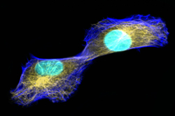 cancer cell dividing